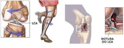 rotación rodilla